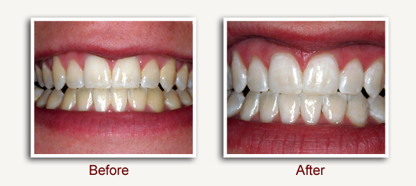 Before and After Dental Photo